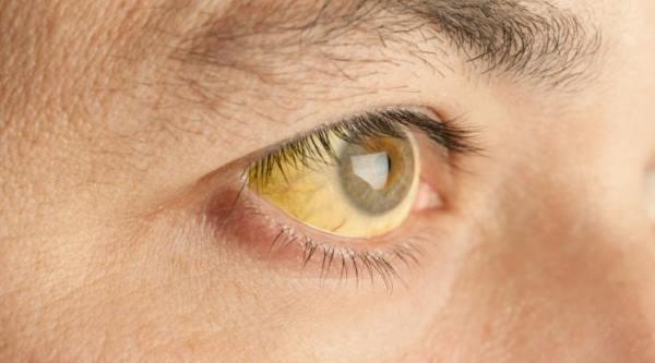 zutica simptomi