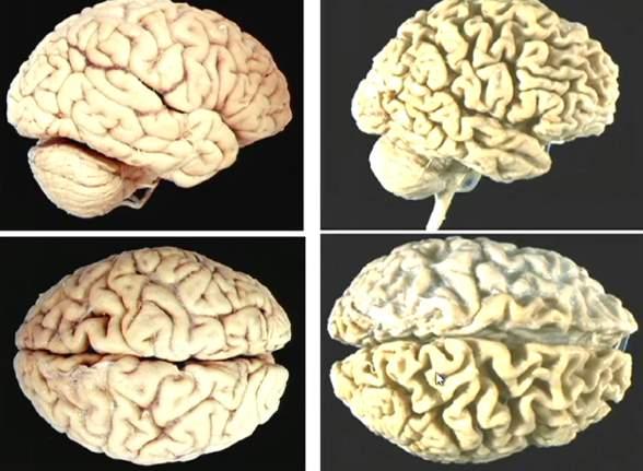 atrofija mozga