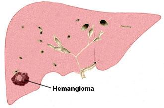 hemangiom na jetri