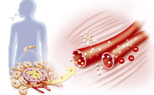 insulinska rezistencija simptomi