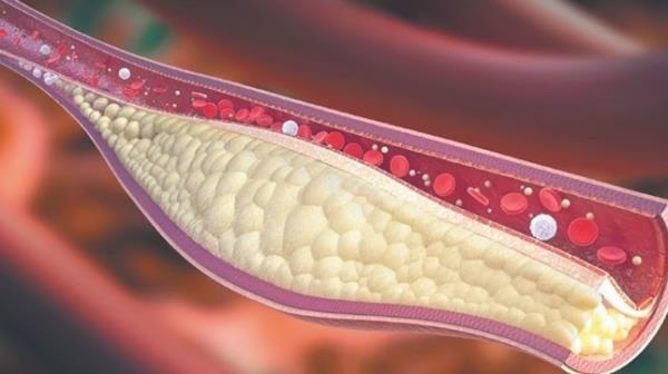 masnoce u krvi lek