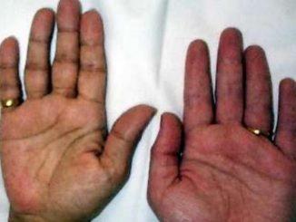 adisonova bolest simptomi