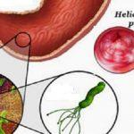bakterija u zelucu