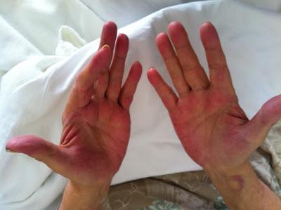 crveni dlanovi