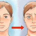 gravesova bolest simptomi