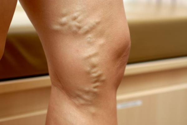 varikozne vene na nogama